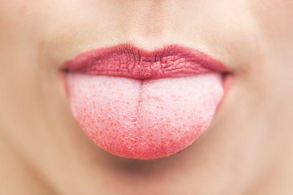 7 Dinge, die unsere Zunge über unsere Gesundheit verrät
