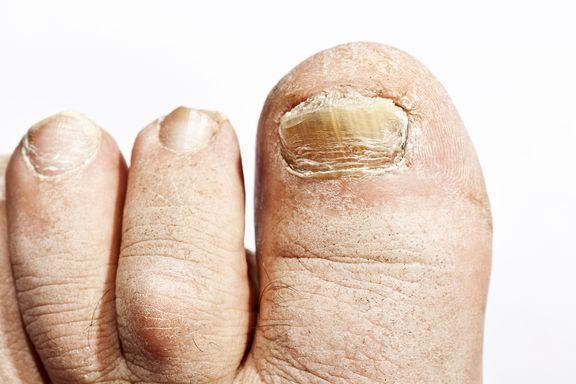 Les symptômes irritants et brûlants du pied d'athlète