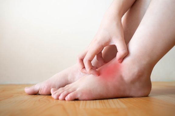Itchy, Burning Symptoms of Athlete's Foot