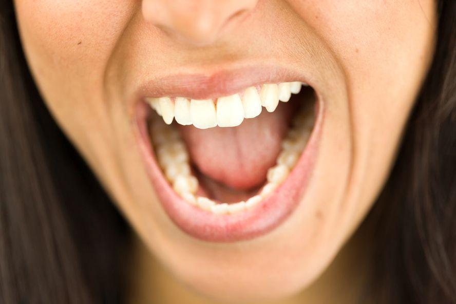 Signes et symptômes de la paralysie faciale de Bell