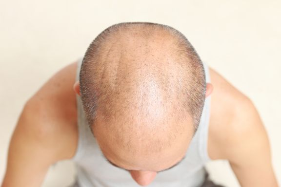 Plucking Hairs Could Stimulate Hair Growth