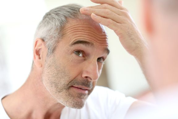 Top Causes of Hair Loss in Men