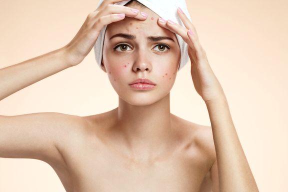 10 topische Behandlungsmethoden für Akne