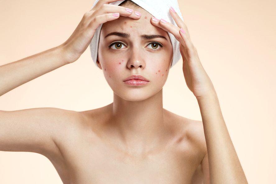 10 traitements topiques pour l'acné