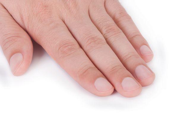 Los 6 problemas más comunes en las uñas de las manos