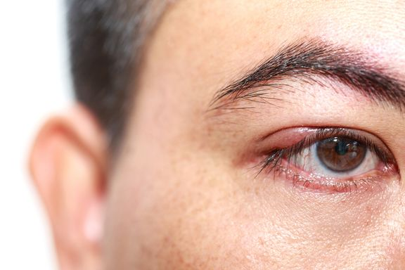 6 Eye-Opening Facts about a Sty
