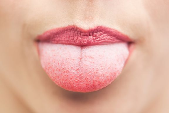 7 Things Your Tongue is Saying About Your Health