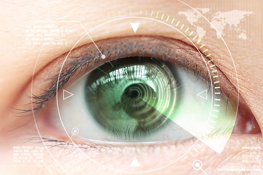 6 Things to Consider Before You Get LASIK