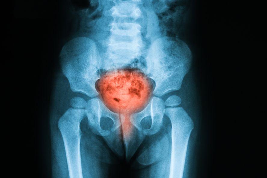 Doce causas de dolor pélvico agudo en las mujeres