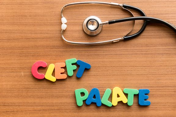 Health Conditions Associated with Cleft Lip or Palate