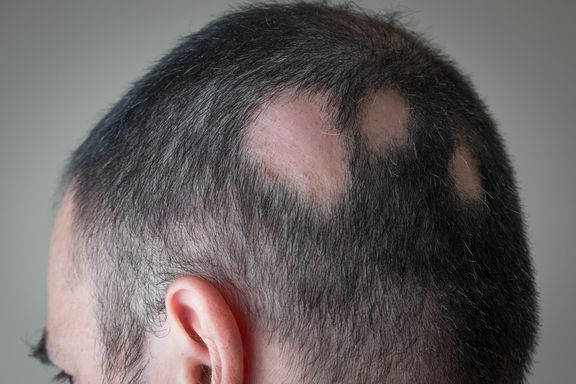 Signs and Causes of Alopecia Areata