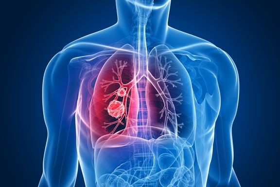 Targeted Therapies for Lung Cancer