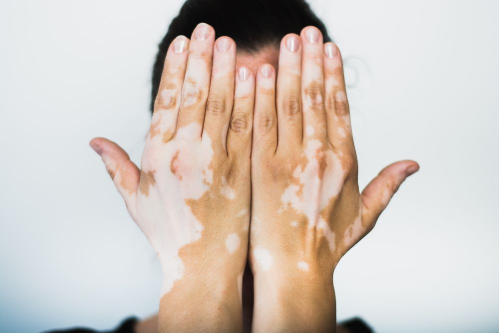 Most Common Adult Skin Disorders