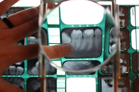 6 Facts That Get to the Root of Tooth Resorption