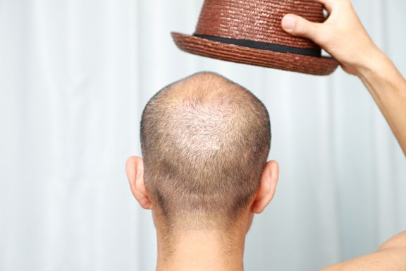 8 Treatments for Hair Loss to Comb Over