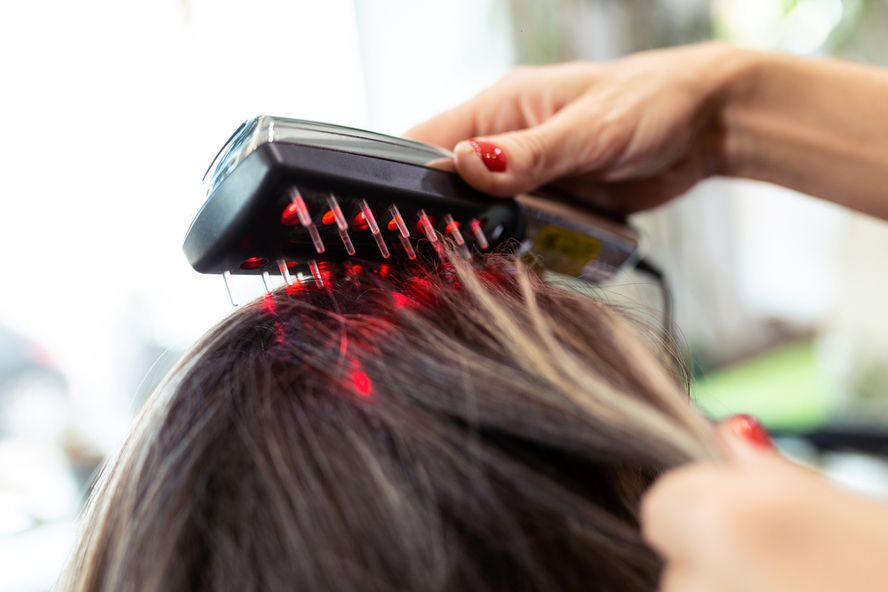 Effective Treatments for Hair Loss