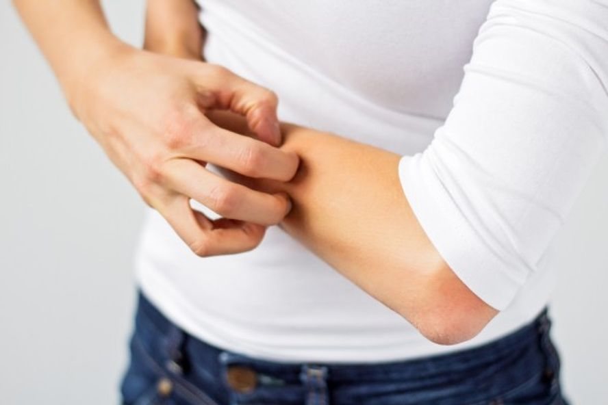 Facts and Risk Factors of Cellulitis