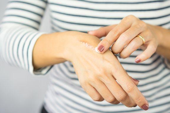 Health Remedies to Treat Minor Burns