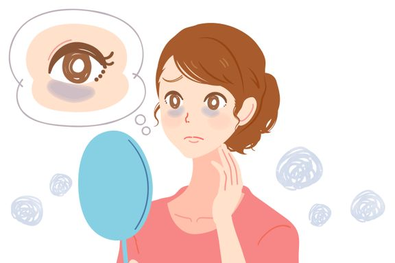 Common Causes of Dark Under-Eye Circles