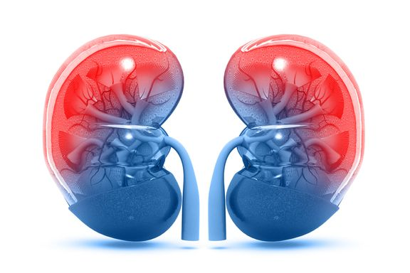 Top Causes of Chronic Kidney Disease