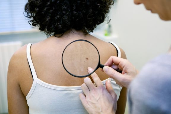 Skin Cancer Symptoms That are More Than Skin Deep