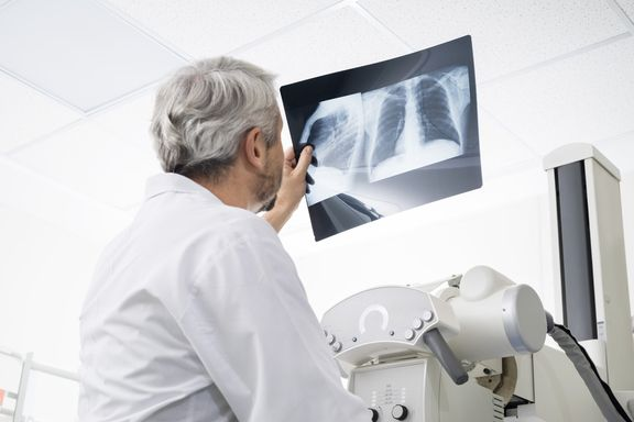 Mesothelioma Stages: What to Expect