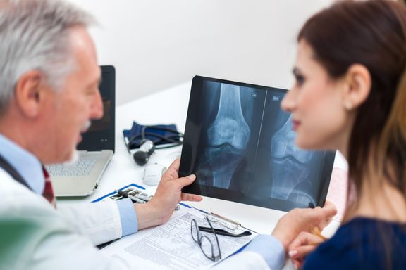 Facts To Know About Osteoporosis