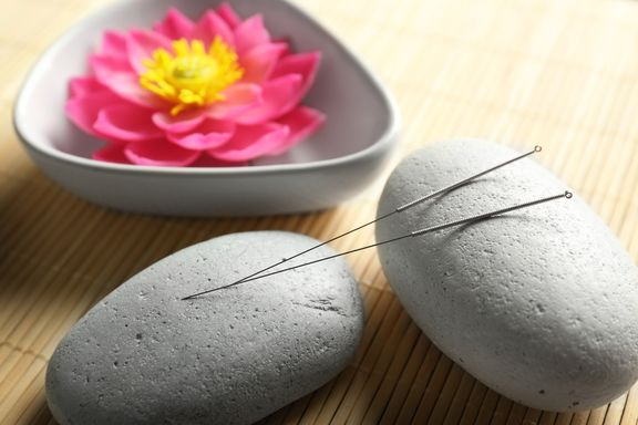 6 Health Conditions Acupuncture Can Help