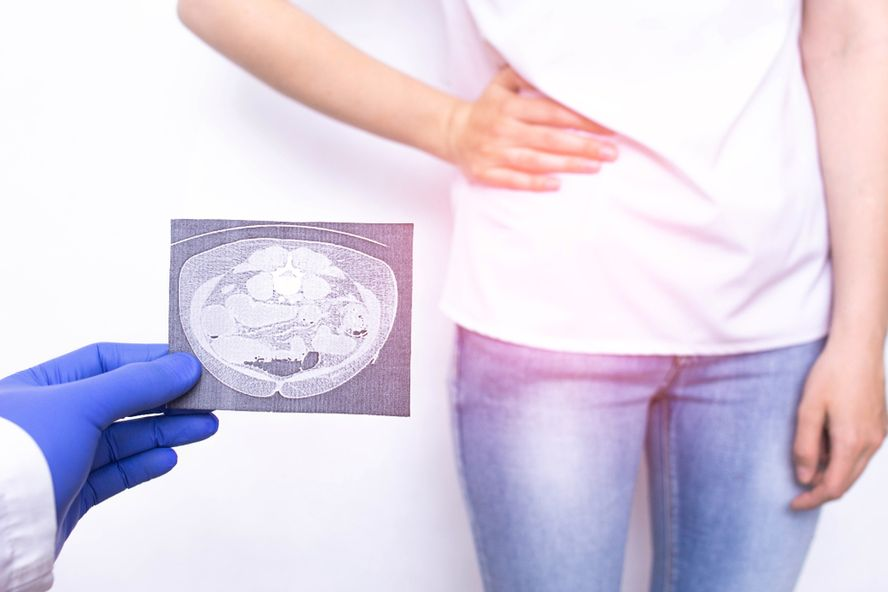 The Most Common Symptoms Leading Up to Appendicitis