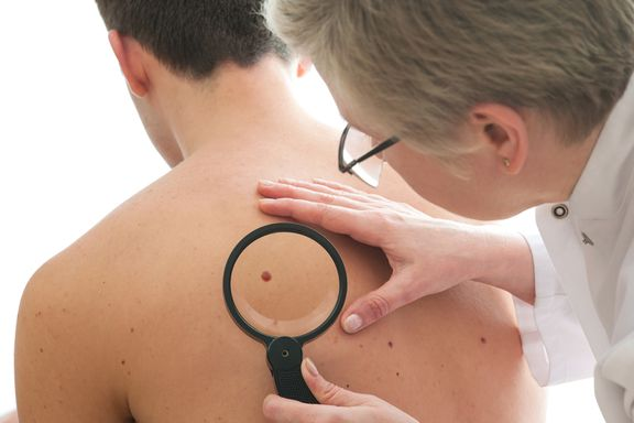 Signs and Symptoms of Non-Melanoma Skin Cancer
