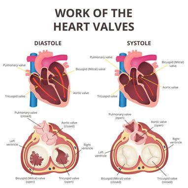 leaky heart valve diet