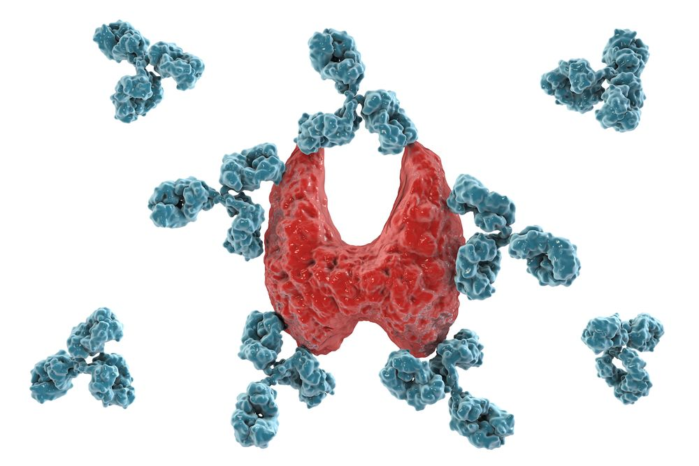 Common Causes of Hypothyroidism
