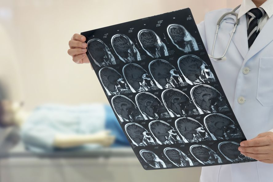 What to Know About a Transient Ischemic Attack or Mini-Stroke