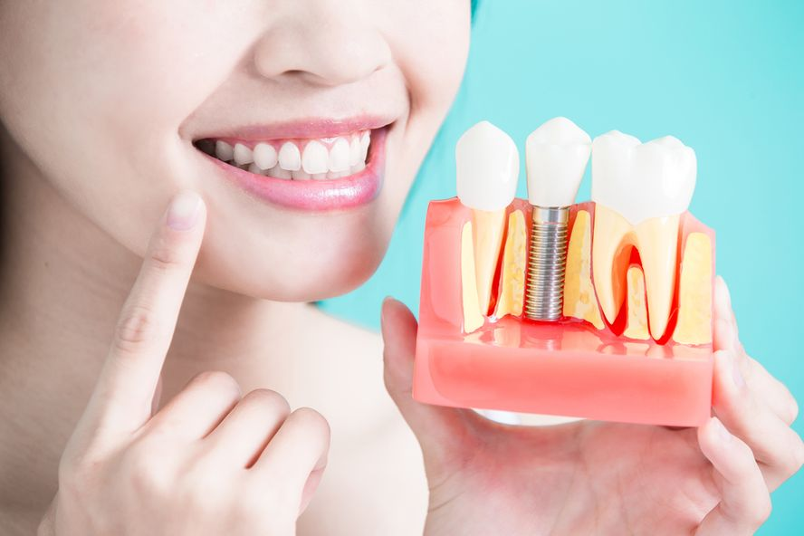 Dental Implant Surgery: Step by Step and the Results