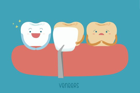 What to Know Before Getting Dental Veneers