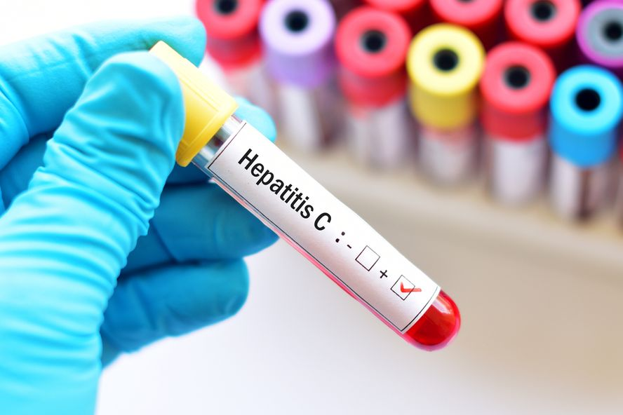 Important Facts About Hepatitis C
