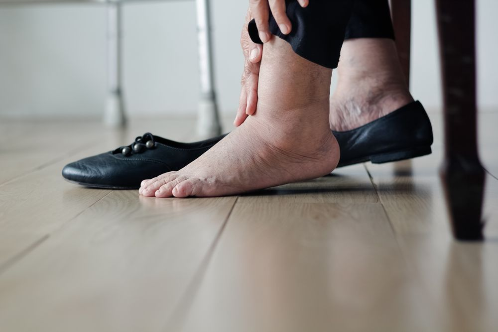 Common Causes of Swollen Feet