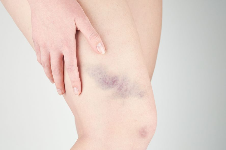 Reasons You Bruise So Easily