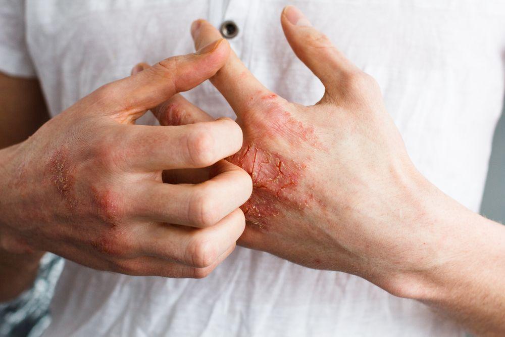 Eczema: Signs, Symptoms, and Treatment Options