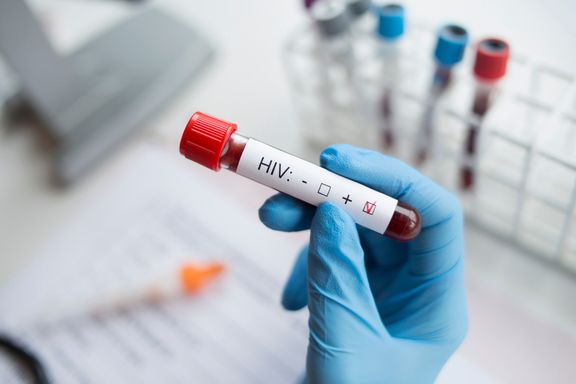 Signs You May Have HIV