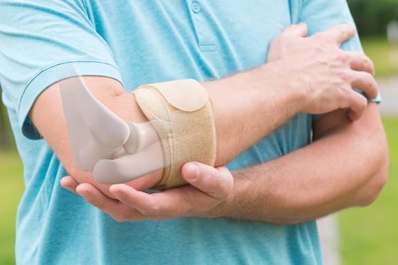 Symptoms, Causes, and Treatment Options of Bursitis