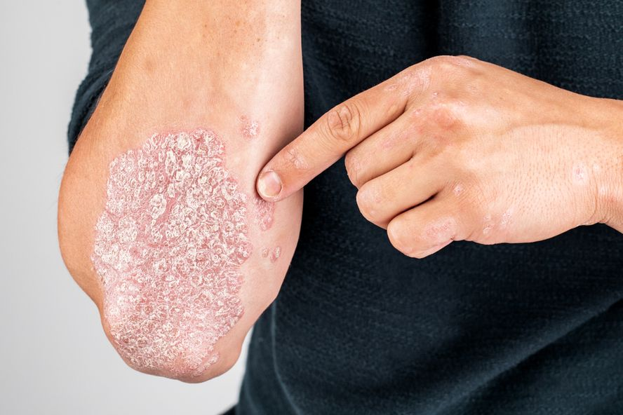 Plaque Psoriasis: Signs, Causes, and Treatment Options