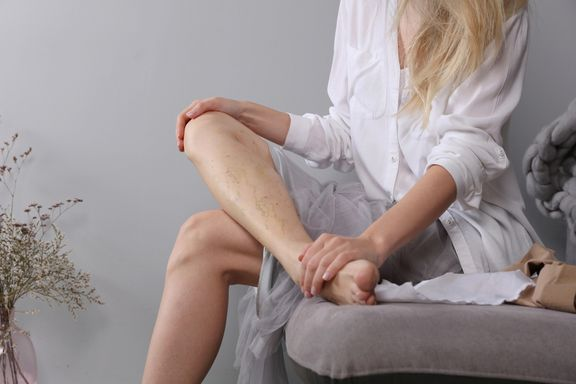 Facts for Women with Varicose Veins