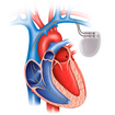 A Complete Guide to Living With a Pacemaker