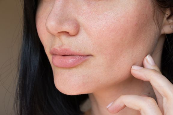 Single-site fat grafting vs HA Injections for Cheeks and Lips