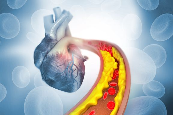High Cholesterol Red Flags You Should Know