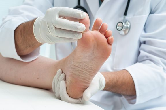 Important Facts to Know About Gout