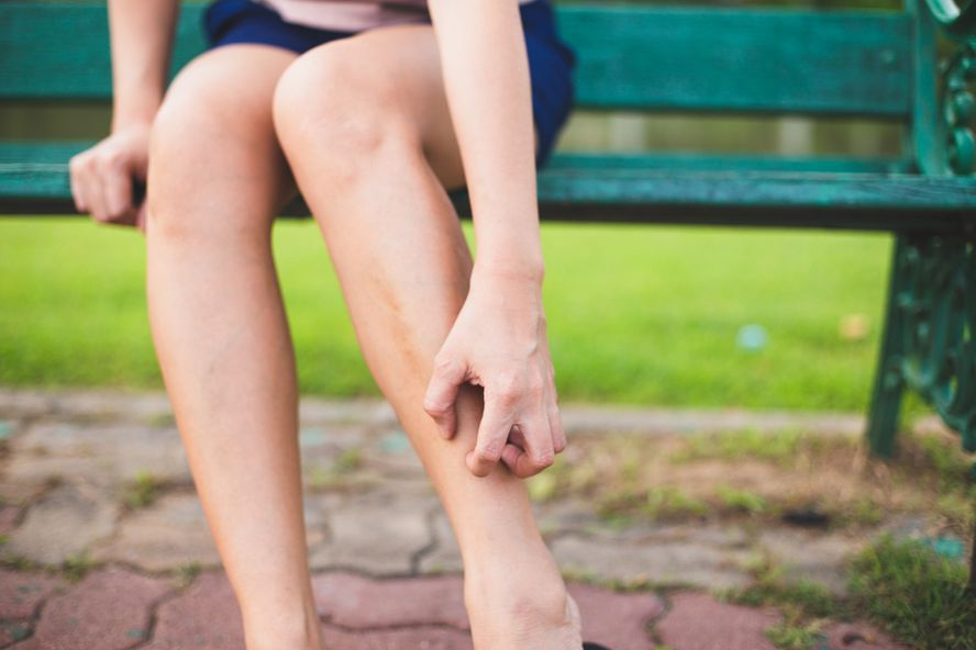 Poison Ivy Rash: Signs, Symptoms, Treatment, and Prevention