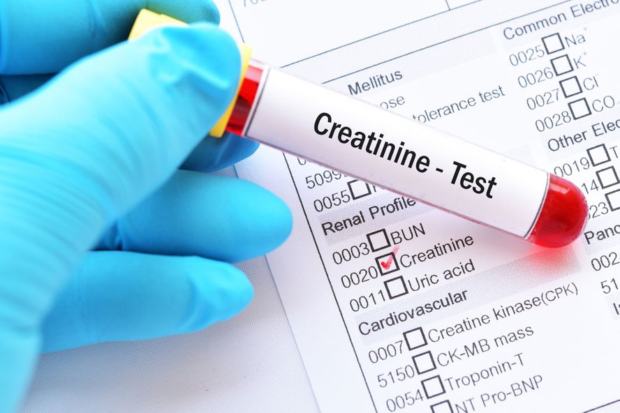 What Should Your Creatinine Levels Be at Every Age