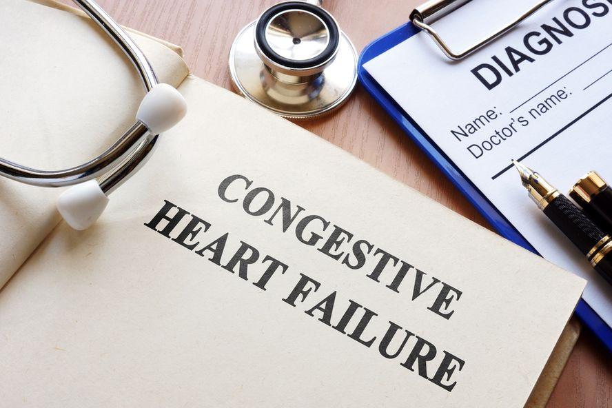 Congestive Heart Failure: The 4 Stages, Symptoms, and Causes
